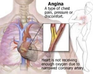 Angina diagram